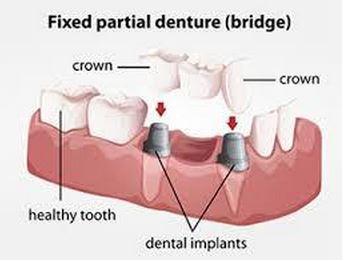 fixed-partial-denture